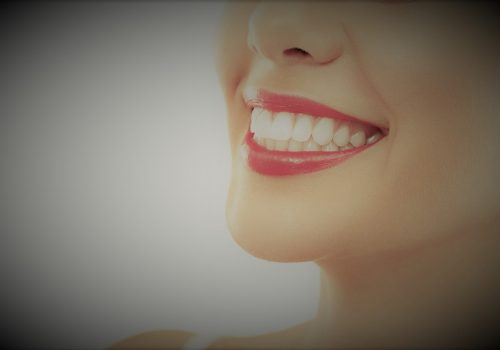 teeth whitening-1